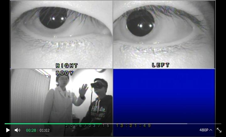 안구검사.jpg